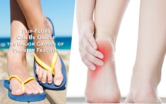 Learn How Flip Flops Can Be One of the Major Causes of Plantar Fasciitis